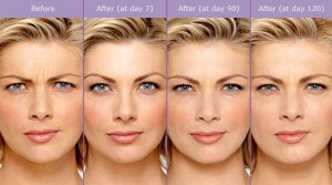 Botulinum Toxin (Botox) Procedure Steps | Palm Desert Plastic Surgery
