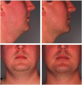 KYBELLA™ Before & After Photos
