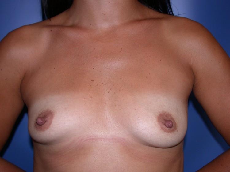 Breast Augmentation - Palm Desert Plastic Surgery