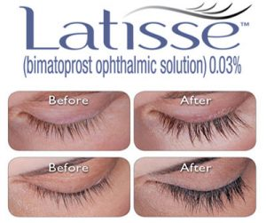 Latisse®