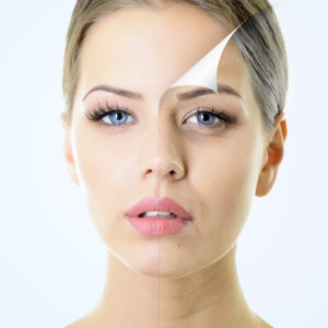 shutterstock_156646856-300x300 Chemical Peels Rancho Mirage | Palm Springs