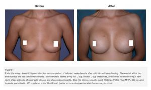 Saline-Breast-Implants-300x179 Saline Breast Implants Rancho Mirage | Palm Springs