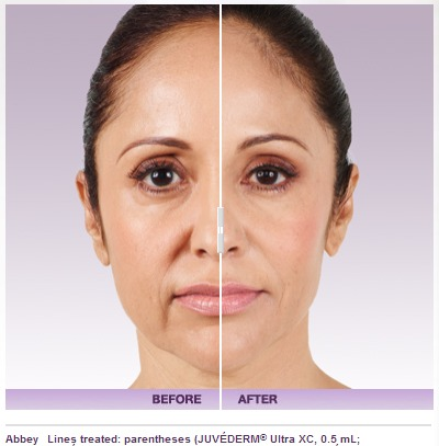 juvederm-4 JUVÉDERM VOLUMA Rancho Mirage | Palm Springs