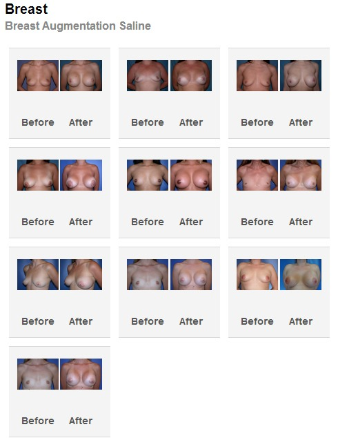 palmdesertplasticsurgery.comgallery-breast-augmentation Breast Augmentation Before and After Photos Rancho Mirage | Palm Springs