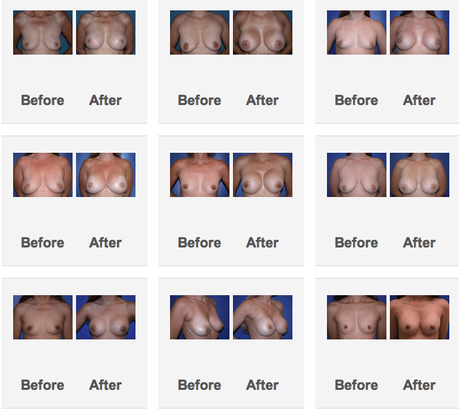 Augmentation breast photo result