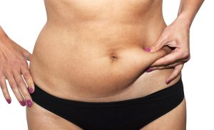 shutterstock_98660858-300x183 Tummy Tuck vs. Liposuction Rancho Mirage | Palm Springs