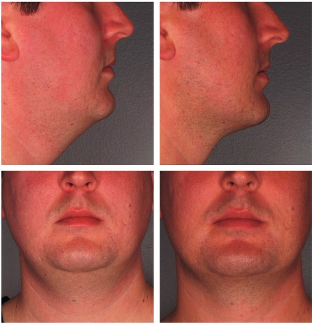 Kybella-Injections-for-Double-Chin-Reduction-Before-After-Photo More Men Seeking Non-Surgical Double Chin Reduction Rancho Mirage | Palm Springs
