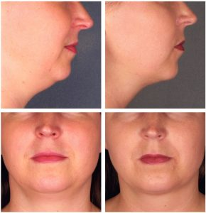 Kybella-Injections-for-Double-Chin-Reduction-Before-After-Photos-290x300 Kybella Rancho Mirage | Palm Springs