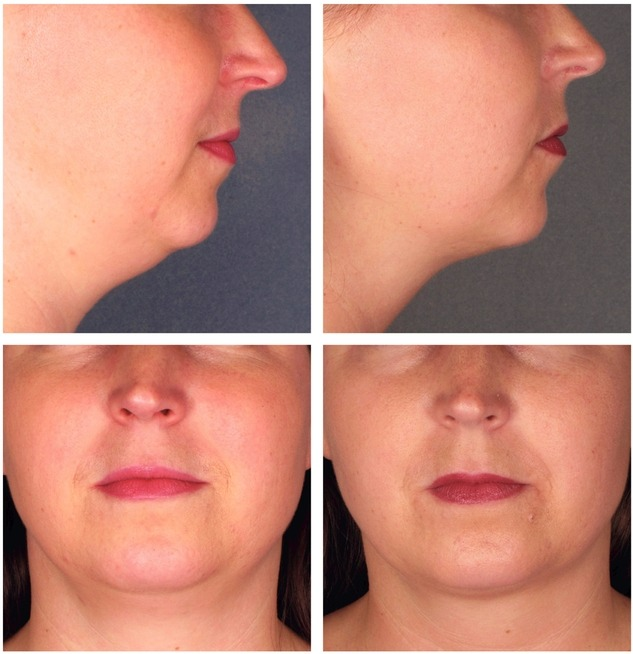 Kybella-Injections-for-Double-Chin-Reduction-Before-After-Photos FDA Approves Kybella Treatment for Fat below the Chin Rancho Mirage | Palm Springs