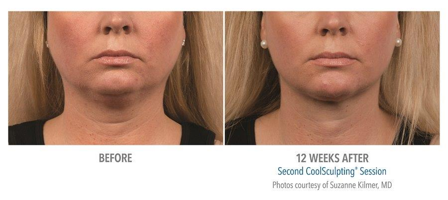 Coolsculpting-for-chin-fat-reduction-before-after-picture CoolMini™ Rancho Mirage | Palm Springs