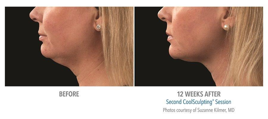 Coolsculpting-for-chin-fat-reduction-before-after-pictures CoolMini™ Rancho Mirage | Palm Springs