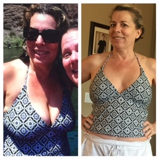 Before breast reduction surgery