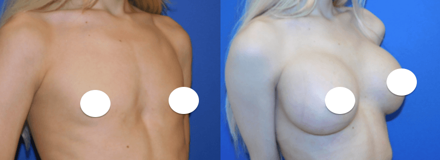 Transgender Breast Augmentation