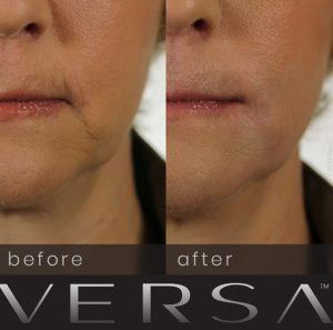 Revanesse-Versa-derma-filler-before-after-photos-300x297 Revanesse Dermal Filler Before And After Photos Rancho Mirage | Palm Springs