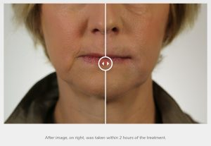 Revanesse-dermal-filler-before-after-pictures-300x207 How Much Does Revanesse Dermal Filler Cost? Rancho Mirage | Palm Springs
