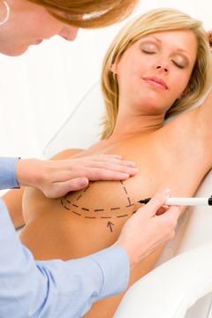 shutterstock_82460785 BreastLift SurgeryWithImplants Procedure Process Rancho Mirage | Palm Springs