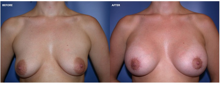 Breast LiftWithImplants Before And After Photos