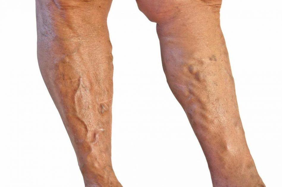 Varicose Vein Treatment Before And After Photos